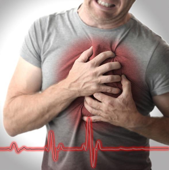 돌연사의 90%가 심장 리듬 깨진 '부정맥' 탓