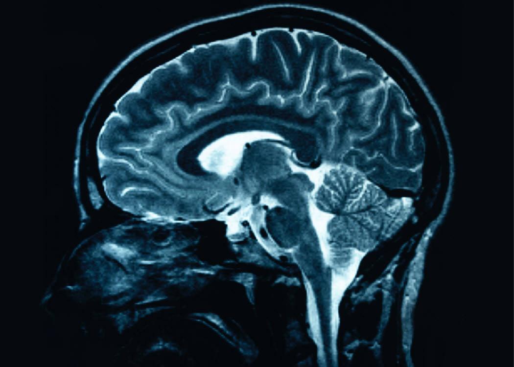 뇌 수술 시 의사와 대화하며 수술하는 방법이 있다?